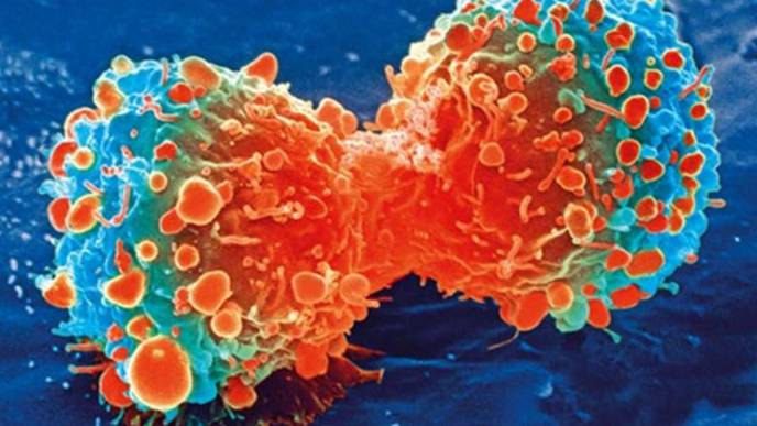 Urine Test That Can Detect Early-Stage Pancreatic Cancer Starts Clinical Study
