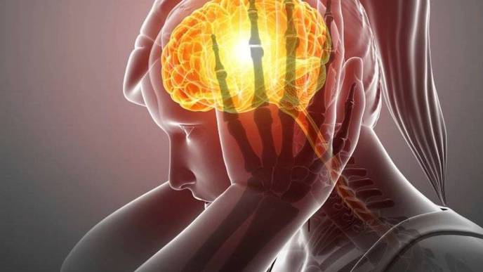 A New Type of Migraine Drug Treats Pain During an Attack