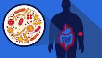 Study: Link Between High-Fat Diet and Arthritis