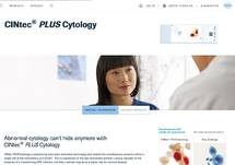 Abnormal Cytology Can't Hide Anymore with CINtec PLUS Cytology