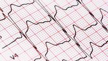Afib Risk Lower After Weight-loss Surgery