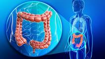 Poorer Survival for Right-Sided Colon Cancer Patients Than Left-Sided Disease