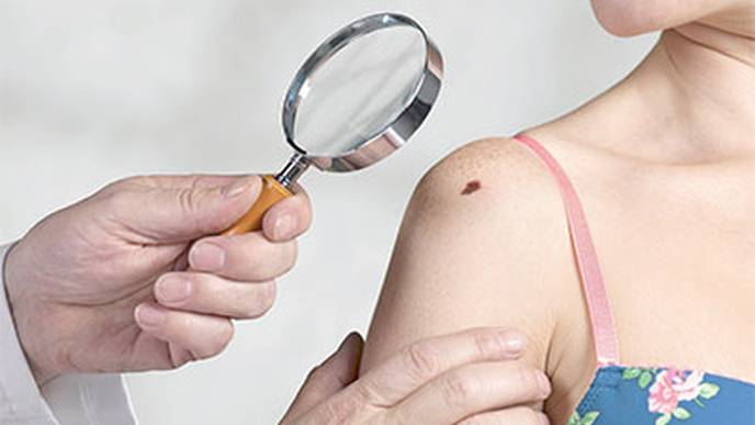 Is Full Lymph Node Removal  always Needed for Melanoma?