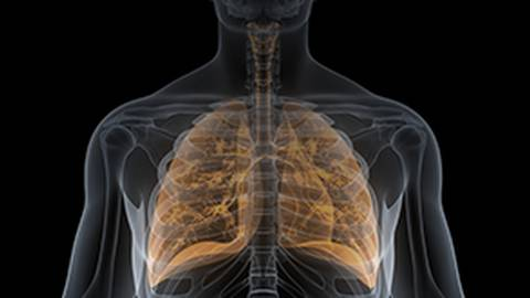 Systemic Sclerosis Interstitial Lung Disease: A Multidisciplinary Approach to Diagnosis, Treatment, & Longitudinal Management