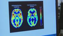 New Study Links Alzheimer's in Women to Menopause