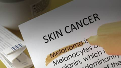 Melanoma Prevention Recommendations