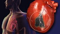 High-Sensitivity Troponin Test Reduces Risk of Future Heart Attack