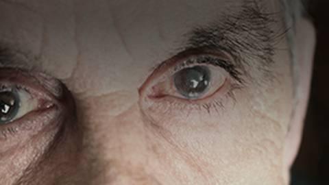 Understanding & Embracing Micro-Invasive Glaucoma Surgery