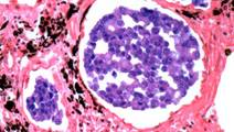 Genomic Profiling May Detect Lung Cancer Early