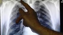 The Danger of Ignoring Tuberculosis