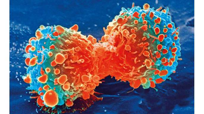 Article Proposes Mucin Link Between Microbial Infections & Many Cancers