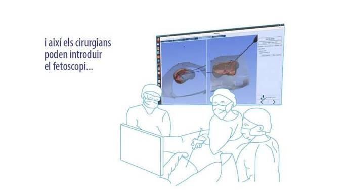 Research Team Creates a Surgical Navigation System for Fetal Surgery
