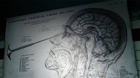 "Lobotomy: Surgery's Misguided First Take on ""Blowing Your Mind"""