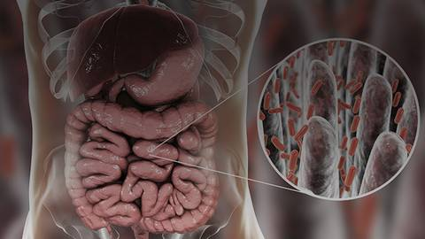 Navigating the Complexities of Small Intestinal Bacterial Overgrowth