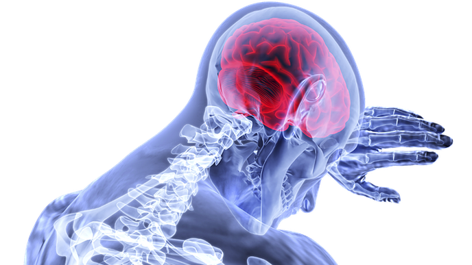 Geisinger Researchers Find Sex Is Not an Independent Risk Factor for Stroke Mortality