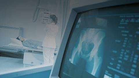 Radiologic Diagnosis of Breast Cancer