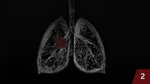Enhancing Your Lung Cancer Practice: Applying Shared Decision Making in the Real-World