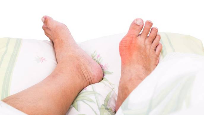 CKD Progression, Recovery Common in Gout Patients Using Urate-Lowering Drugs
