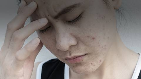 Advancing ACNE Care: Applying Current Knowledge of Patient Needs and Emerging Evidence to Improve Outcomes