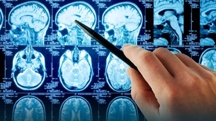 Molecule Could Speed Up the Race for New Neurological Treatments