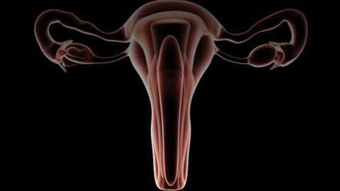 Video: Using Endosee for Diagnostic Hysteroscopy