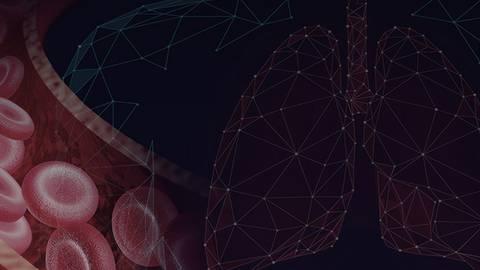 Pulmonary Arterial Hypertension A Deeper Dive