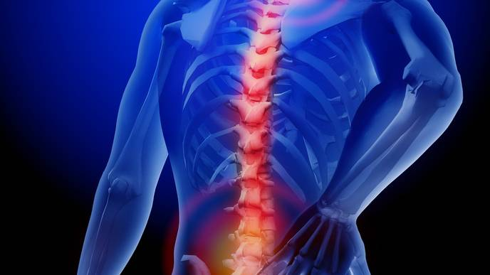 Direct Access To Physical Therapy Reduces Costs To Treat Neck And