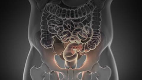 Metastatic Colorectal Cancer: A First-Line Treatment Approach to Wild-Type RAS Patients