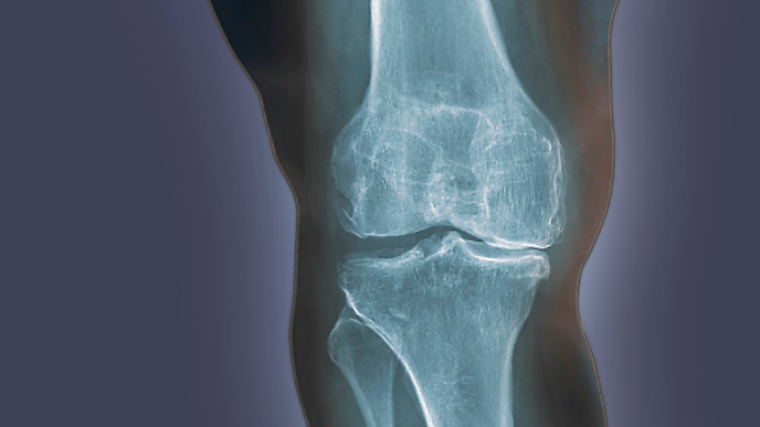 Neuropathic Pain Commonly Found in End-Stage Lower Extremity Osteoarthritis