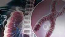 Molecular Profiling, Precision Medicine, and Targeted Therapies for the Treatment of ALK Positive NSCLC