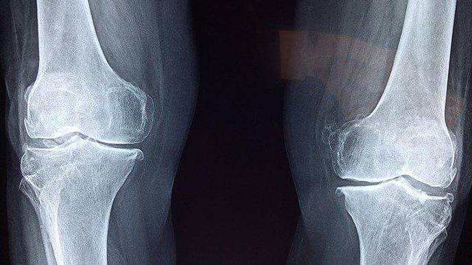 Cognitive Decline May Help Predict Future Fracture Risk in Women