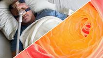 Sleep Disorder Linked with Abnormal Lipid Levels