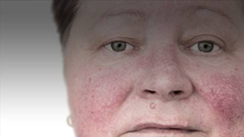 Raising Expectations for Rosacea: Best Practices That Drive Clear Results