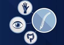 Spotlight on Spondyloarthritis