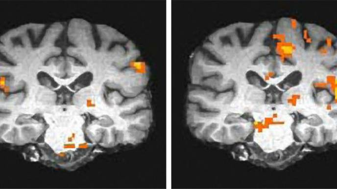 Brain Imaging of Veterans Reveals 2 Subtypes of Gulf War Illness
