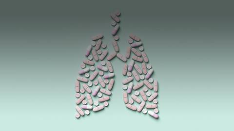 Concerning Kinases: Therapeutic Considerations for RET Rearranged NSCLC