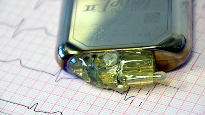 Bionic Pacemaker Slows Progression of Heart Failure