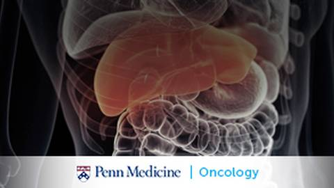 Hepatocellular Carcinoma: Clinical Priorities from Detection to Liver Transplantation