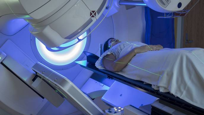 Radiation for Head, Neck Cancer May Cause Later Health Issues