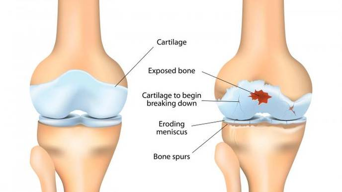 Review: Stages of Osteoarthritis of the Knee