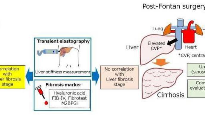 Post-Fontan Liver Fibrosis Goes Under the Radar