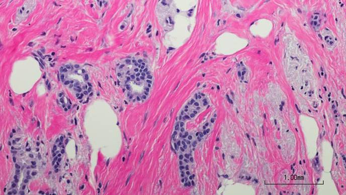 New Potential Cancer Players Revealed by Extensive Tumor Protein Analysis