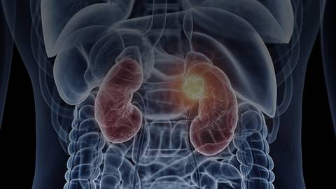 Exploring Select Clinical Presentations of Patients With Advanced Renal Cell Carcinoma