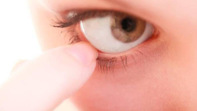 Why Pink Eye or Conjunctivitis Could Be a Symptom of COVID-19