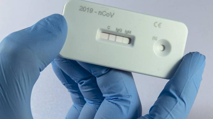 Was That COVID-19? Antibody Tests Promise Answers But Beware of Their Limits