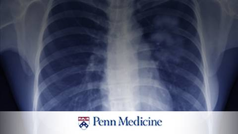 A Thoracic Surgeon's Viewpoint on Screening, Diagnosis and Treatment  of a Lung Cancer Patient