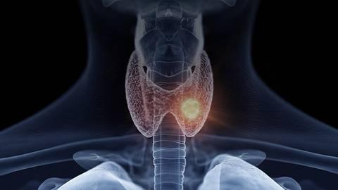 Supplying Thyroid Cancer Treatment Through COVID-19