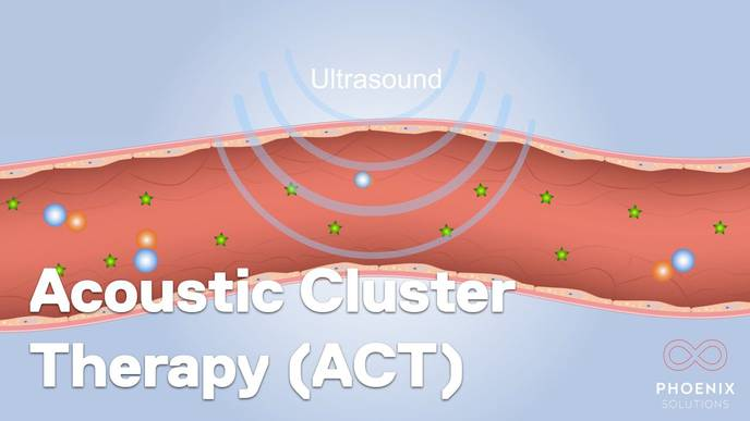 First Treatment with 'Acoustic Cluster Therapy' to Improve Chemotherapy Delivery