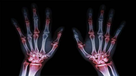 Role of JAK-STAT Pathway in Rheumatoid Arthritis Disease Progression