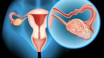 Photoacoustic Imaging May Help Doctors Detect Ovarian Tumors Earlier